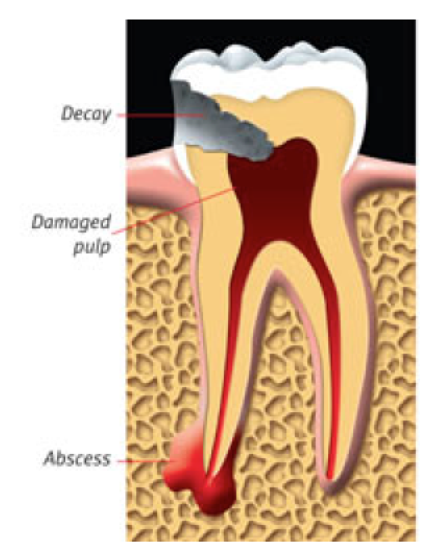 An abscessed tooth.